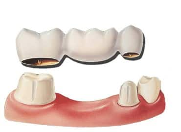 dental-bridge-westminster-carroll-county-md